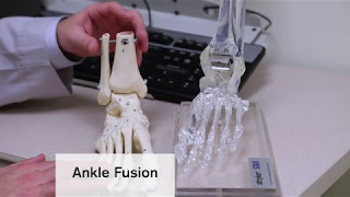 Ankle replacement surgery enables Loyola patient to walk again without pain Video