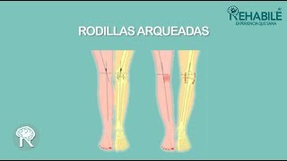 Espalda piernas de arqueadas con dolor
