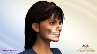 Different Types Jaw Surgery