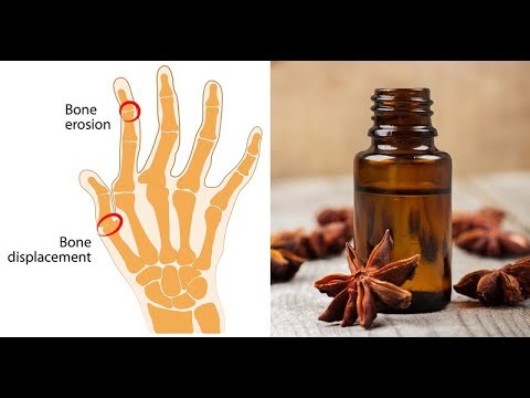 anise-essential-oil:-health-benefits-of-anise-essential-oil.