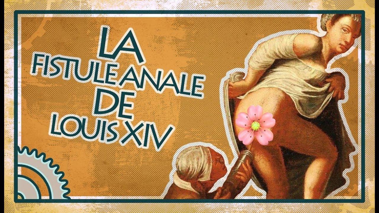 La fistule anale de Louis XIV - Asclépios #5