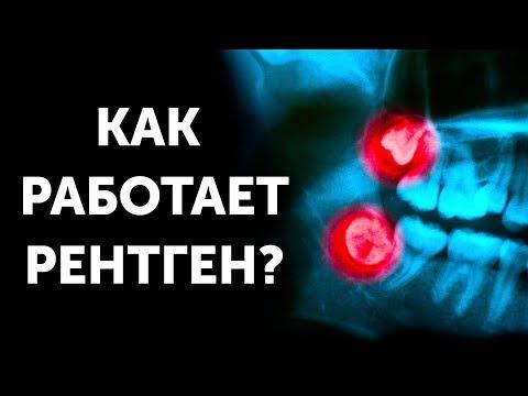 Как работает рентген?