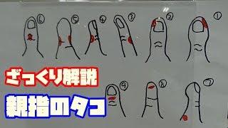 親指が抜けない人必見!これでキレイな親指になるタコの原因を解説!