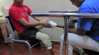 Restoring Life & Limb- Guatemala 2012