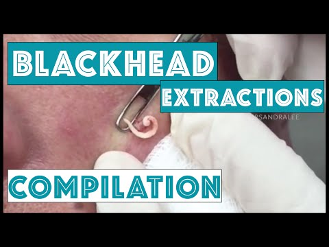 hqdefault - Professional Pimple Popping Videos