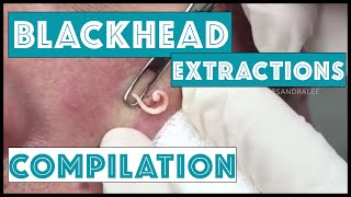 Long and Satisfying Blackhead Extractions: A Dr Pimple Popper Compilation