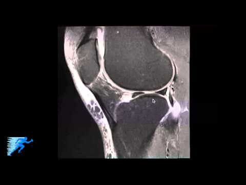 How to Read Knee MRI of Meniscal Root Tear | Knee Surgeon Colorado thumbnail