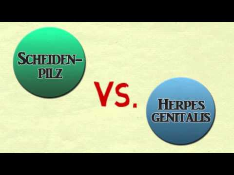 Scheidenpilz oder Herpes genitalis