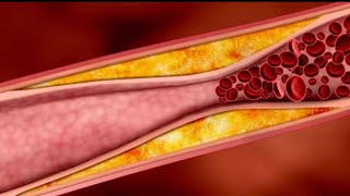 Разжижить кровь Снизить уровень холестерина