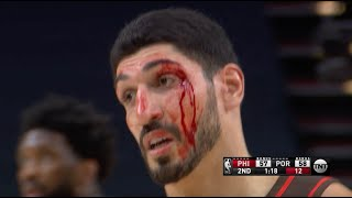 Enes Kanter Gets Stitches After Taking Elbow To The Head