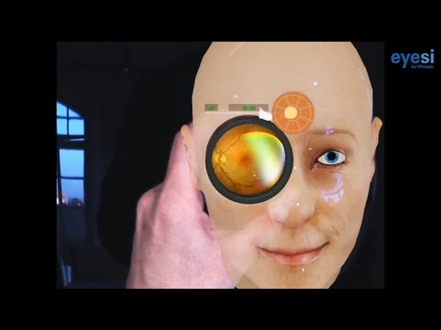 VRmagic Eyesi Indirect Ophthalmoscope Simulator