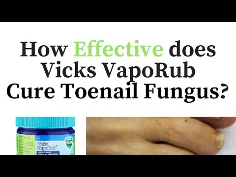 Vicks Vapor Rub for Toenail Fungus – Cure or Myth?
