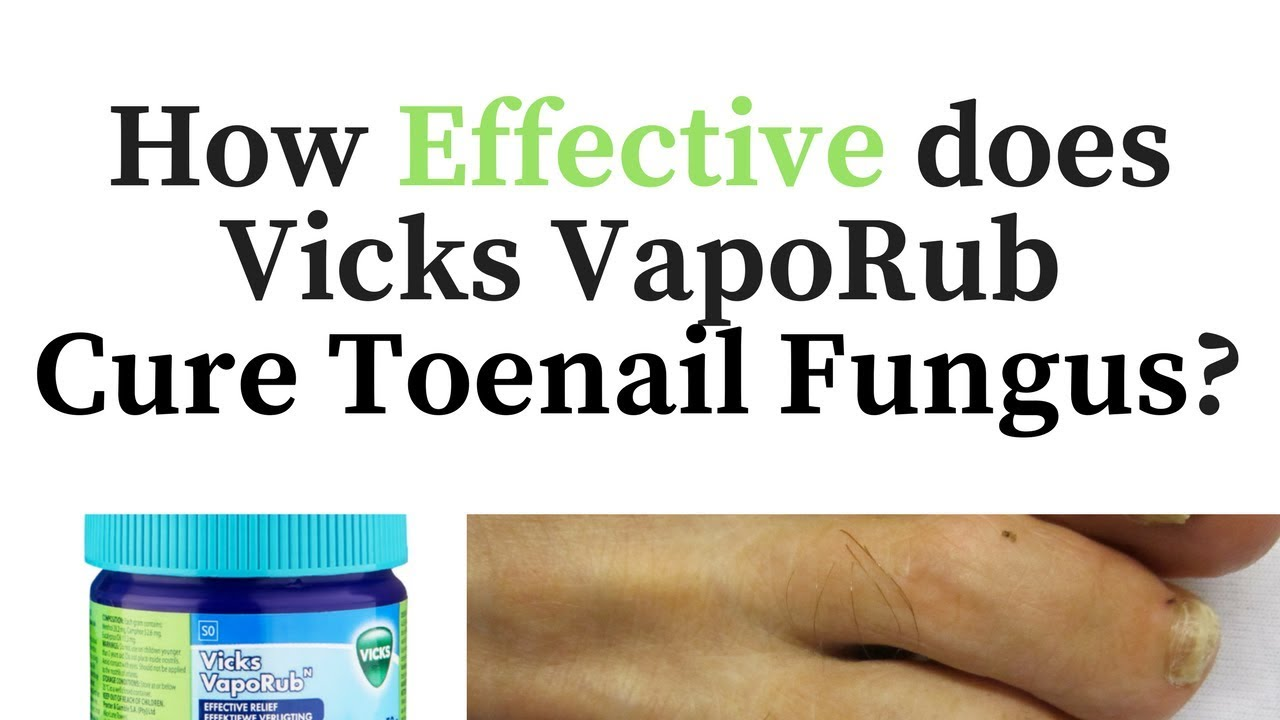 Vicks Vapor Rub for Toenail Fungus - Cure or Myth? - YouTube