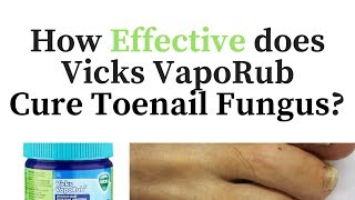 Vicks Vapor Rub for Toenail Fungus - Cure or Myth?