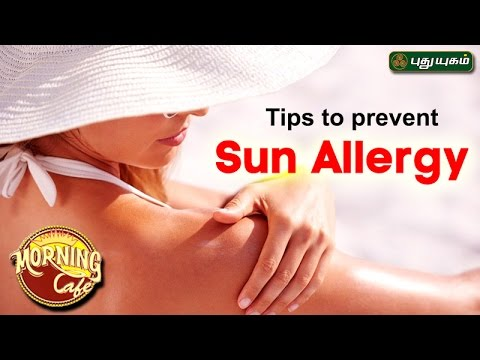 Tips to prevent Sun Allergyஅழகு கலை For Beauty Morning Cafe 26-04-2017