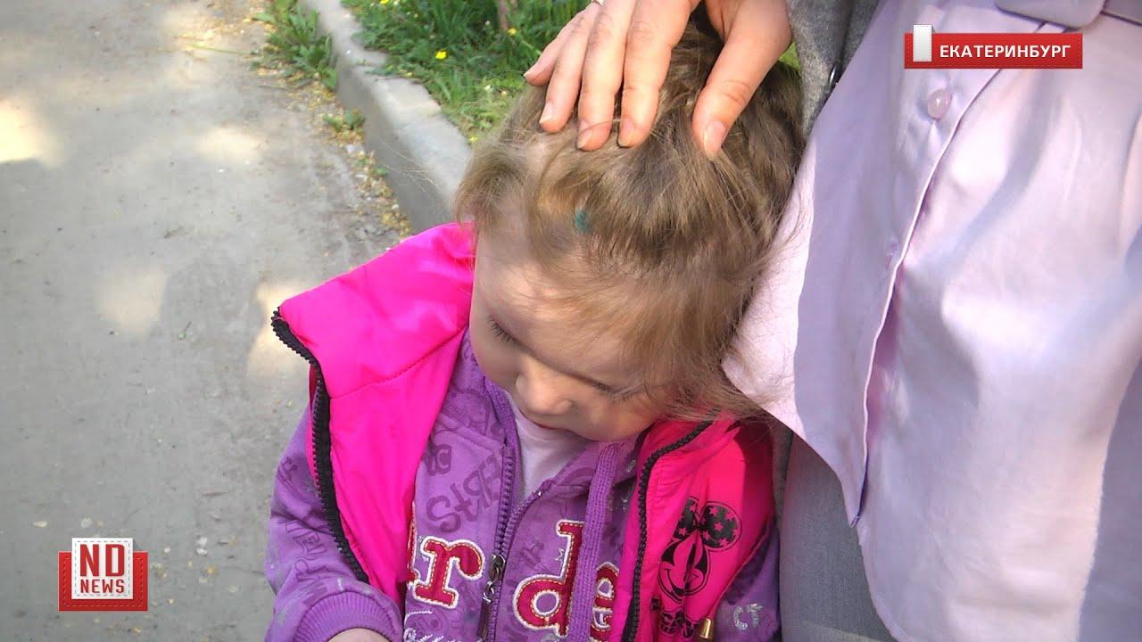 Мать забрала ребенка из детсада с клещом в голове