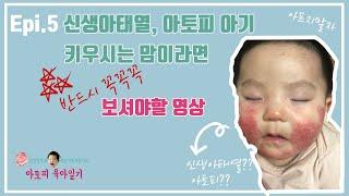 Epi. 5 신생아태열, 아토피 아기 키우시는 맘이라면…