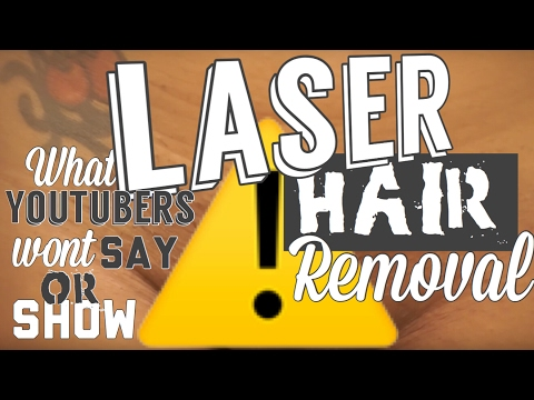 Laser Hair Removal Journey   What  YouTubers won