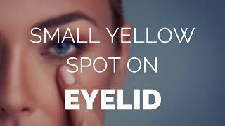 Small yellow spot on eyelid, is it Xanthelasma or Xanthoma?