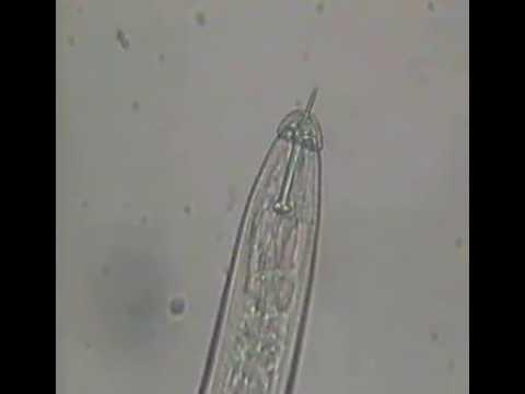 Molya disease of Wheat by Heterodera avenae (Hindi dub)