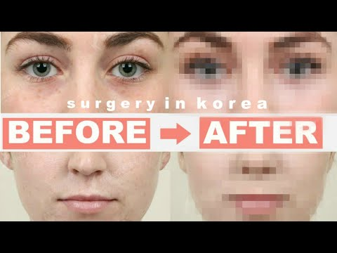 I GOT PLASTIC SURGERY IN KOREA... Was It Worth It? | Seoul Guide Medical