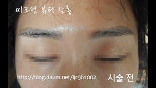 눈썹문신제거 시술전후-군산,전북,전주,익산,서천,장항,…