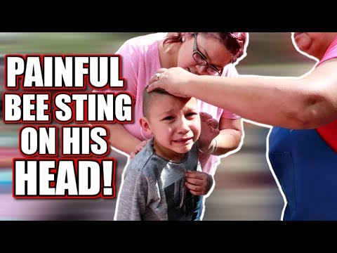 PAINFUL BEE STING ON HIS HEAD! SCARY BEE ATTACK!