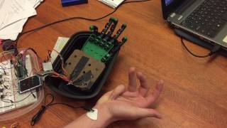 EMG Robotic Hand