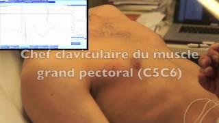 EMG du muscle grand pectoral