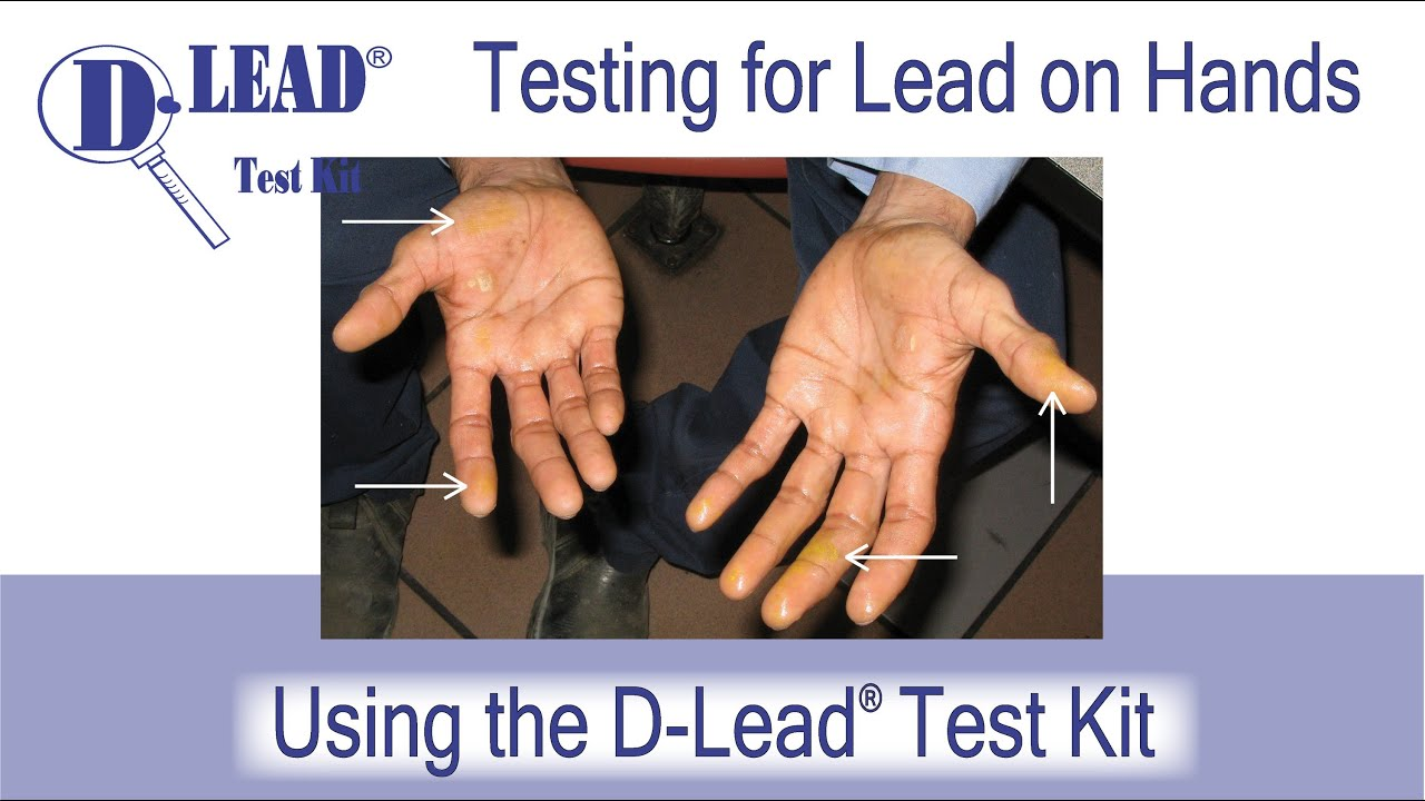 dlead test kit a test for lead on hands and skin