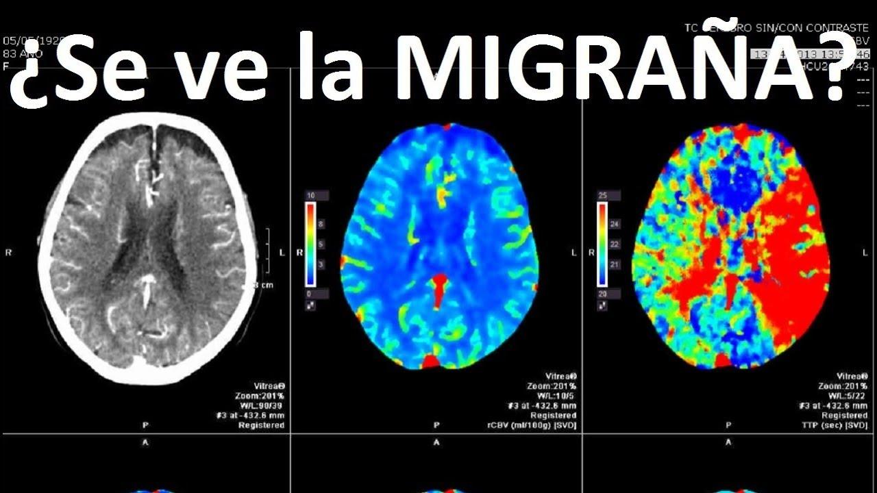 que detecta una resonancia magnetica en la cabeza