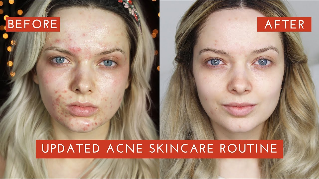 exuviance acne recension