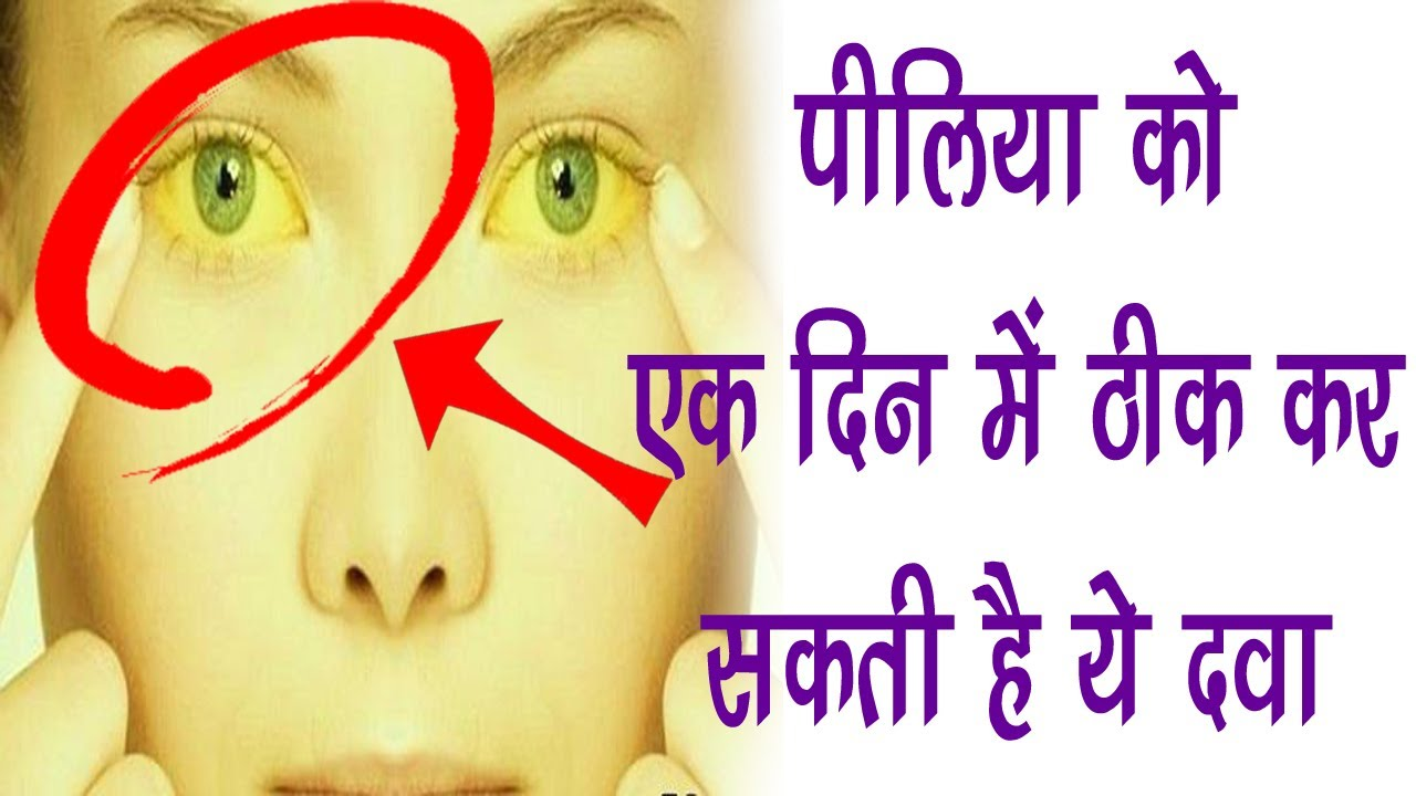 पीलिया को एक दिन में ठीक कर सकती है ये दवा || Jaundice Cure In Ayurveda By  Vaidya Ji Live
