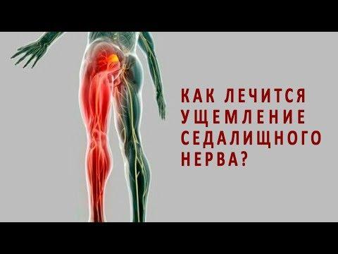 Защемление седалищного нерва болит нога