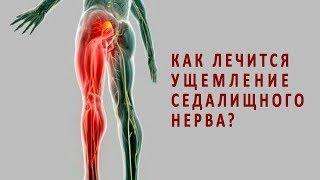 Как лечится ущемление седалищного нерва?