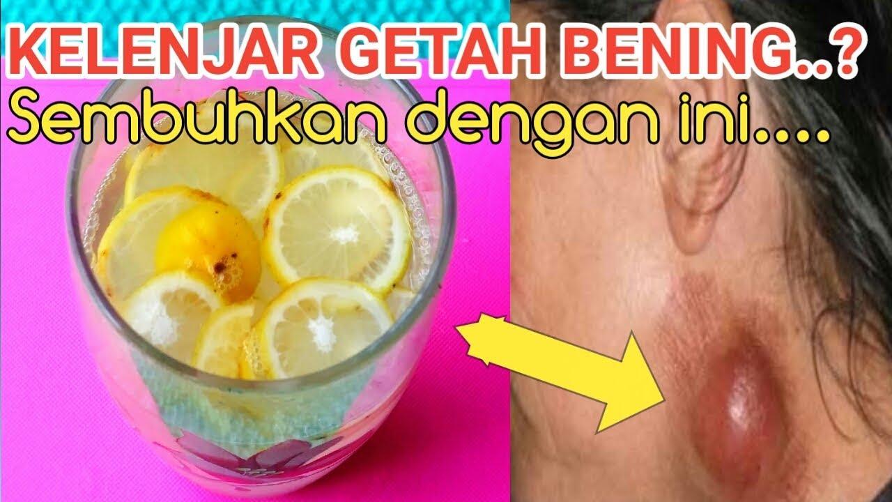 Cara herbal seduhan lemon kelenjar getah bening - YouTube