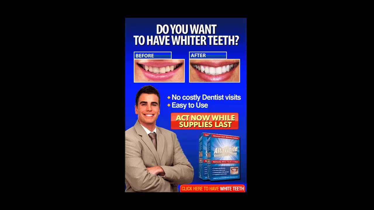 Alta White Home Teeth Whitening Kit Review Youtube