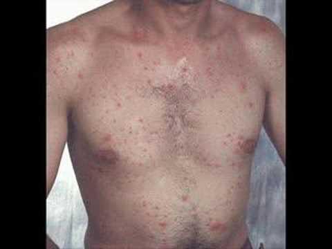 Behcet's Disease PSA