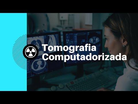 Vídeo Aula 004 - Introdução Tomografia Computadorizada [Radiologia na Palma da Mão]