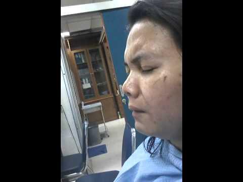 Pengambilan Tampon Operasi Sinusitis Yani