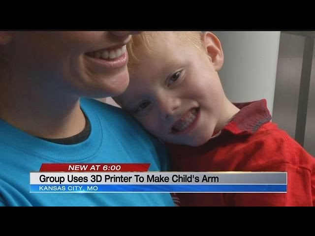 Group uses 3D Printer to make child's arm