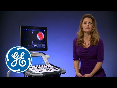 GE's Automated Function Imaging   GE Healthcare