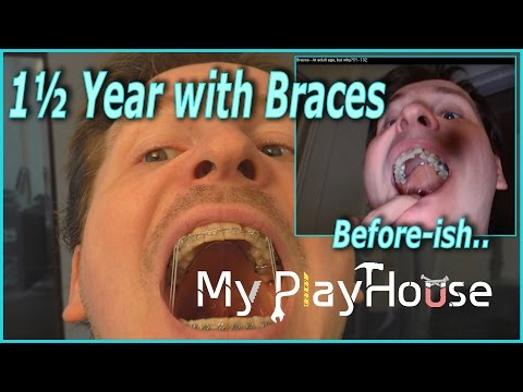 1½ Year with Braces, and approaching the END - 364