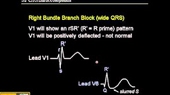 hqdefault - Right Bundle Branch Block With St Depression