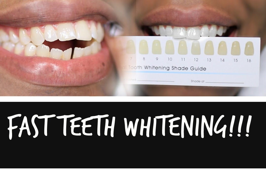 How To Whiten Teeth Fast At Home Works 100 Lovelyanneka Youtube