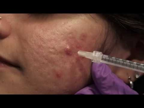 hqdefault - Tricort Injection For Acne