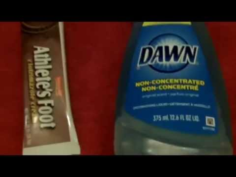 Jock itch treatment with dishwashing liquid
