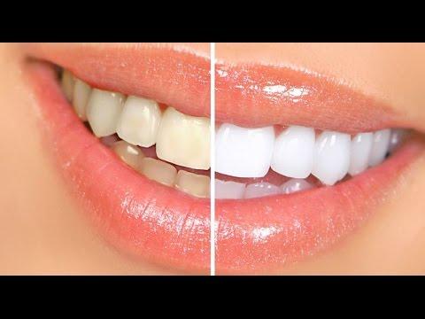 C mo blanquear los dientes dientes m s blancos youtube for Como desmanchar el marmol blanco