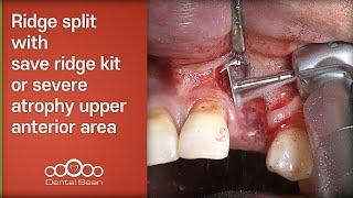 Ridge split with save ridge kit or severe atrophy upper anterior area [#Dentalbean]