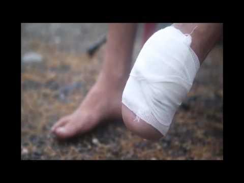 Denuncias sobre mutilaciones en la PGV